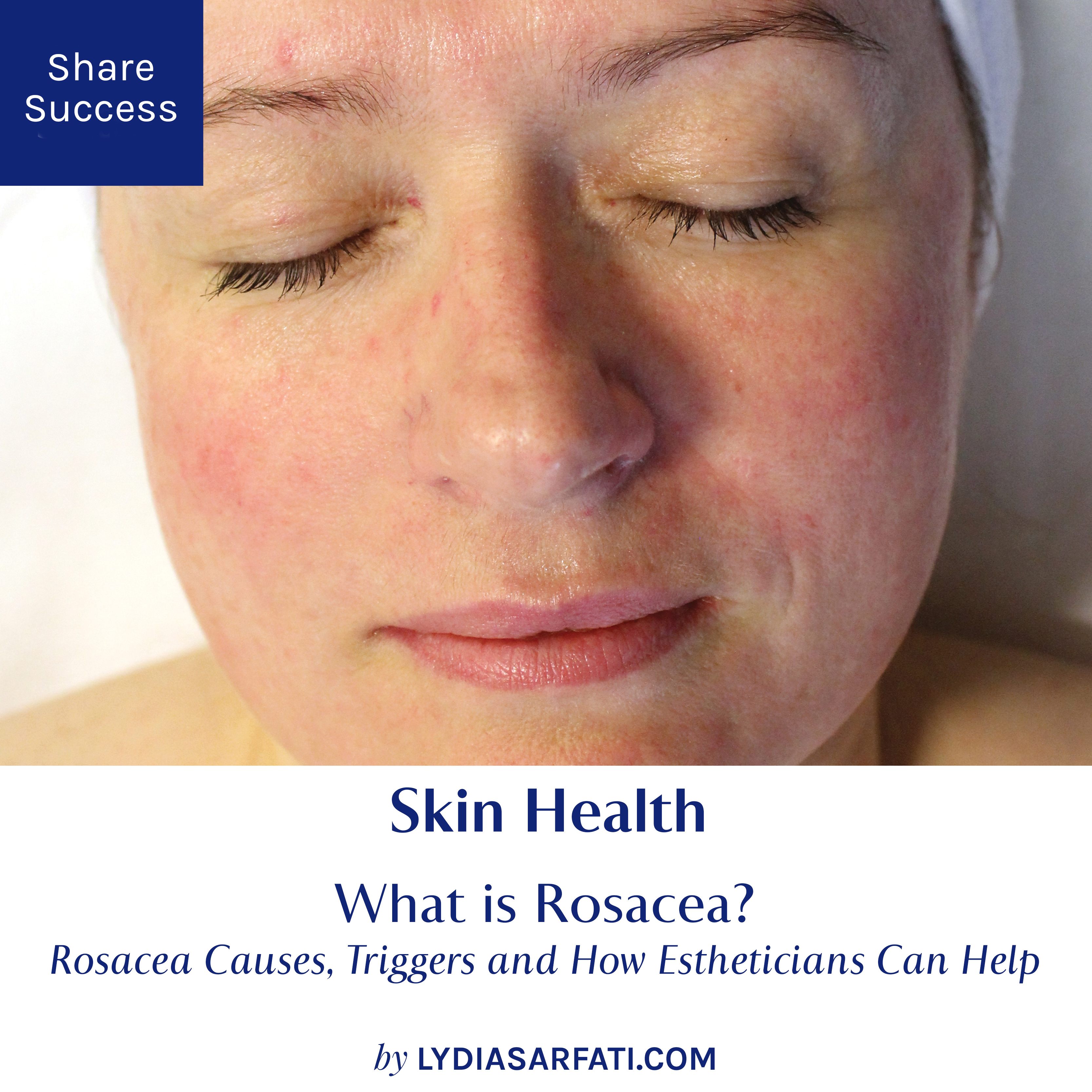 What Is Rosacea Rosacea Causes Triggers And How Estheticians Can