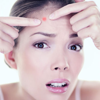 Acne: 4 Lifestyle Changes for Acne Solutions